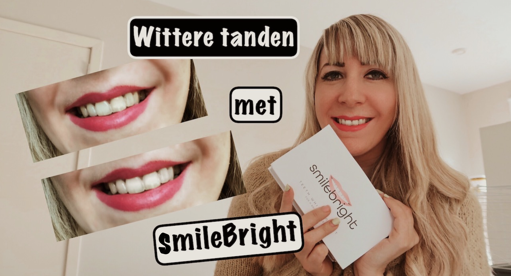 jennaminnie jenna minnie fashion blog Wittere tanden met SmileBright