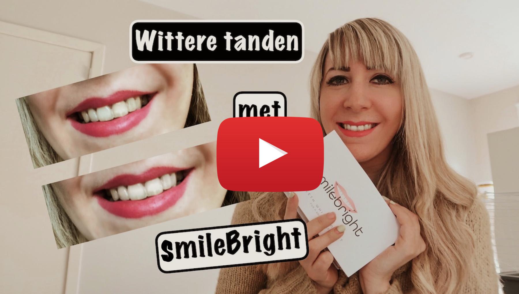 jenna minnie fashion blog smilebright wittere tanden