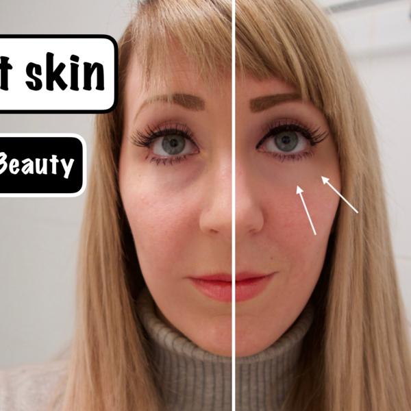 jennaminnie jenna minnie fashion blog A perfect skin with Lifetrons Beauty